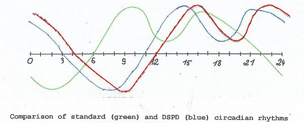 graph of normal, DSPD, and B's sleep-wake cycle